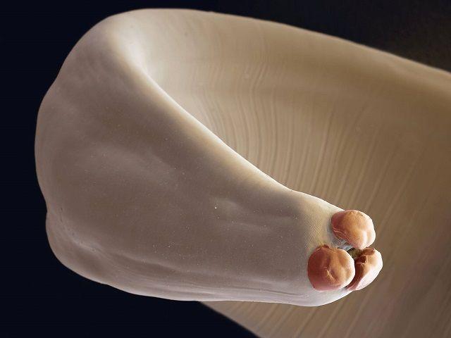 Аскаридоз - круглий глист